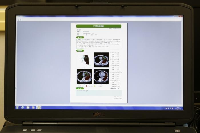禁煙外来や生活習慣病の治療に役立つ専用ソフト